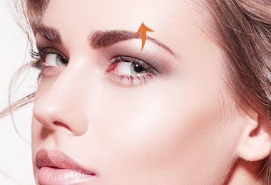 割双眼皮术后肿胀期有几个阶段