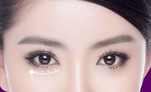 做了祛眼袋手术以后该怎么护理