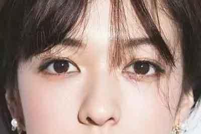 上海哪里割双眼皮比较自然效果好