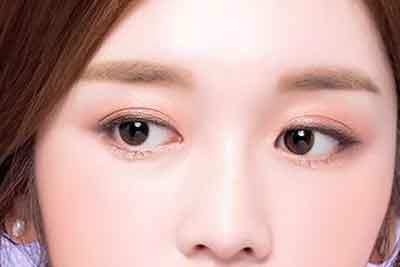 上海做眼部整形手术要花多少钱