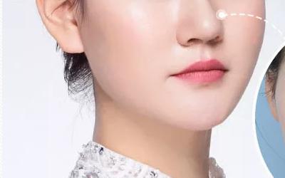 上海美莱做韩式隆鼻要花多少钱