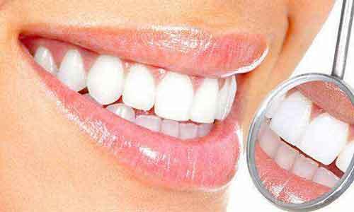 矫正牙齿很痛怎么办?美莱医生科普!