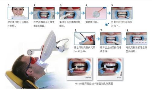 上海做牙齿激光美白效果