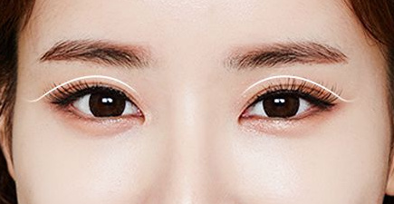 上海双眼皮整形有哪些风险