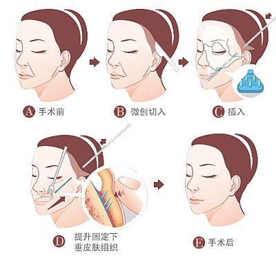 上海做面部松弛下垂怎么解决