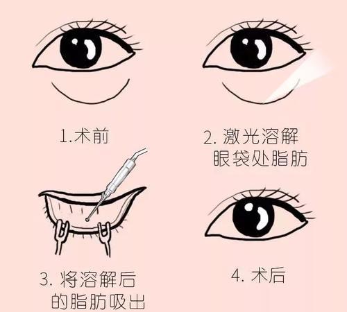 上海不开刀祛眼袋要多少钱