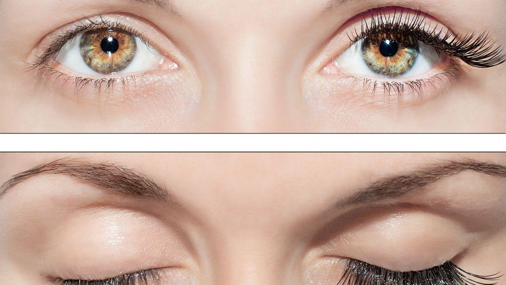 上海双眼皮整形手术多少钱