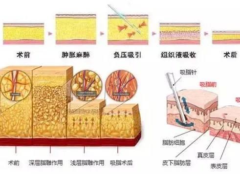 上海腹部抽脂吸脂后注意什么