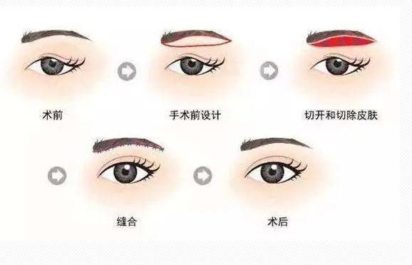 上海眼皮下垂做什么手术好