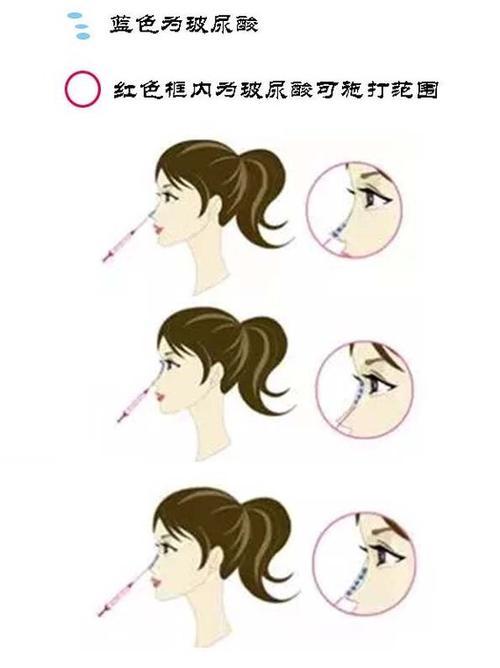 上海玻尿酸隆鼻效果怎么样