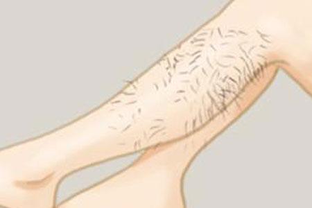 激光脱腿毛