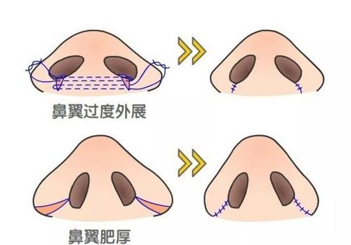 上海美莱鼻翼缩小后遗症有吗
