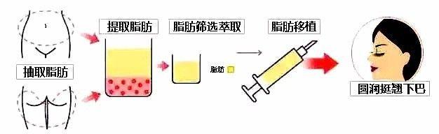 上海美莱自体脂肪填充下巴效果