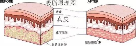 上海做背部吸脂大优势