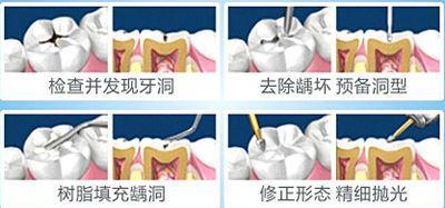 上海补牙价格贵吗