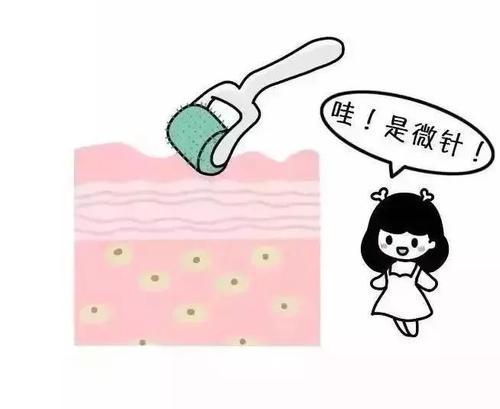 上海微针祛痘与激光哪种好