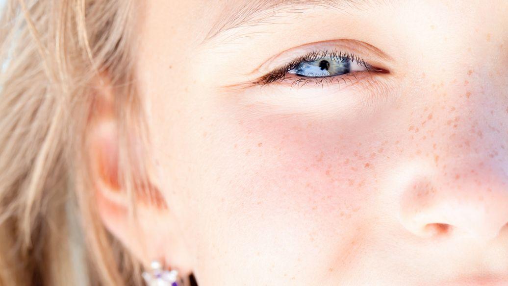 美莱光子嫩肤让皮肤变得敏感吗
