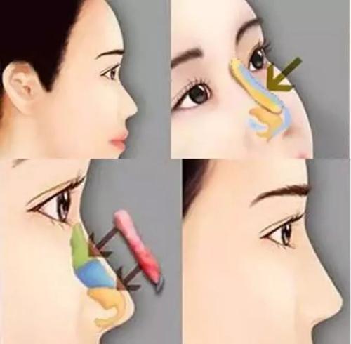 美莱做自体软骨隆鼻会被吸收吗