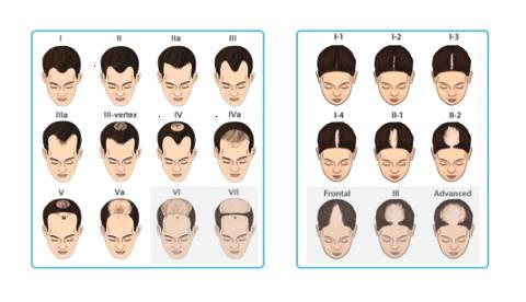 上海植发后取发区会秃吗