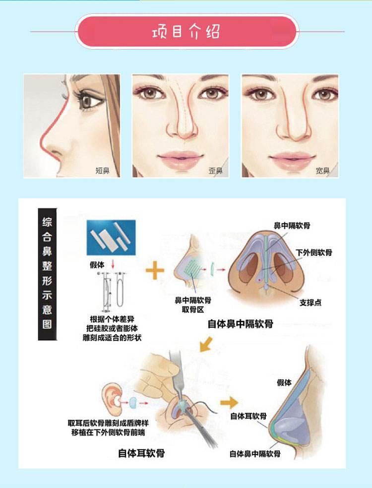 上海做假体隆鼻手术要多久