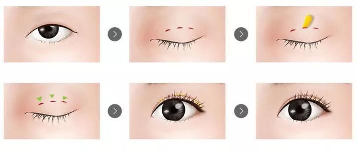 上海做双眼皮术前医师做什么