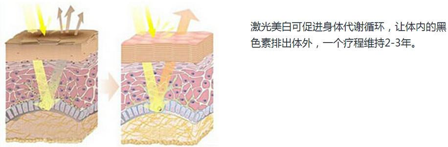 上海做激光怎么美白有效果