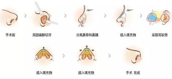 上海不适合自体软骨隆鼻哪些人