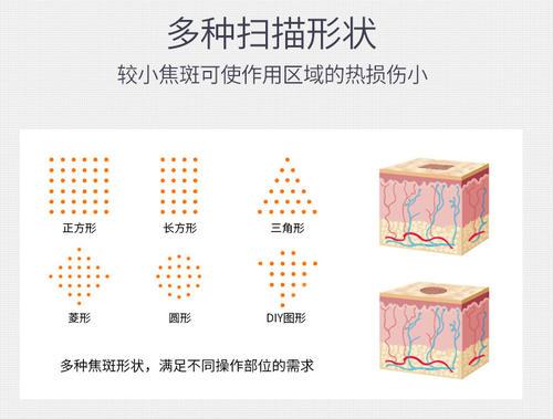 上海点阵激光收缩毛孔效果优势哪些