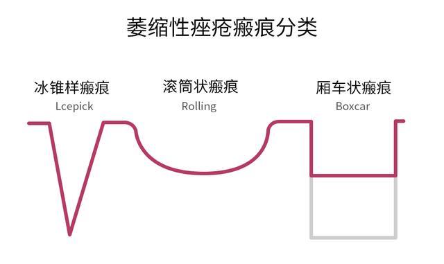 上海点阵激光祛痘和痘坑有效吗