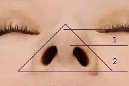 鼻翼缩小手术效果