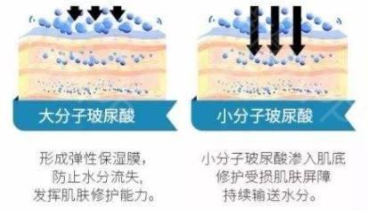 上海爱芙莱玻尿酸注射除皱效果