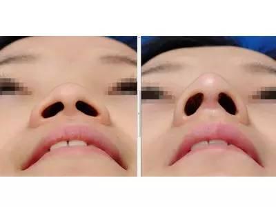 上海做L型隆鼻假体效果安全吗