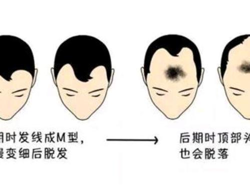上海发际线怎么种植的