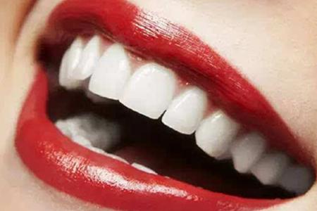 矫正牙齿多少钱