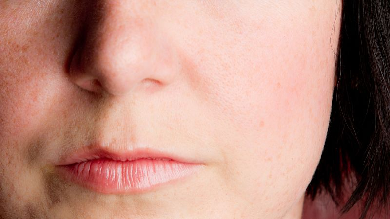上海女性脸上长斑的原因哪些