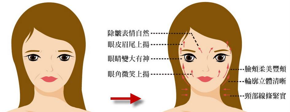 上海注射除皱玻尿酸与除皱针哪个好