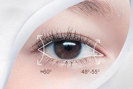 双眼皮术后多久恢复