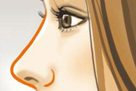 假体隆鼻术后多久恢复