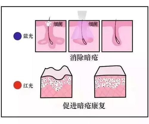 美莱红蓝光祛痘效果及用处怎么样