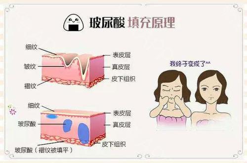 上海玻尿酸填充维持效果期限多久
