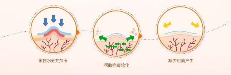 上海做激光祛疤原理
