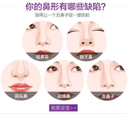 上海玻尿酸注射隆鼻靠谱吗