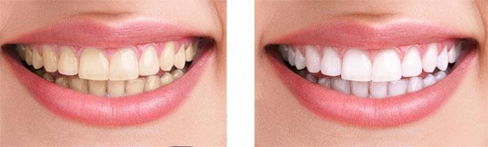上海做牙齿牙线会让牙缝越来越大吗