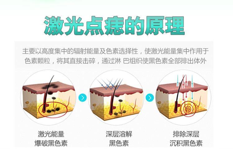 上海美莱激光祛斑好不好