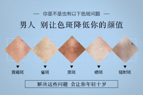 上海祛斑引起蝴蝶斑哪些成因