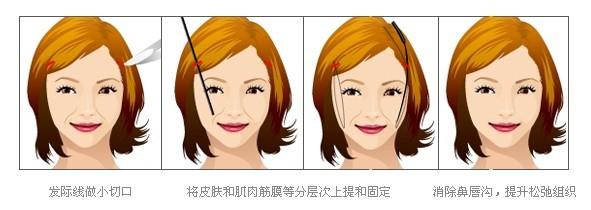 上海做激光除皱手术会反弹吗